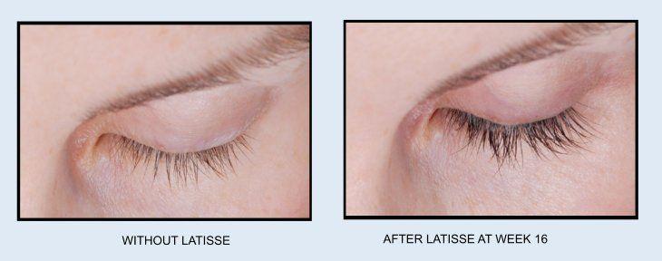 Latisse - Longer Eyelashes and Eyelash Rejuvenation