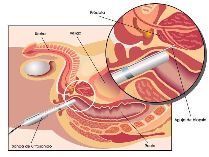 Dureri de prostata