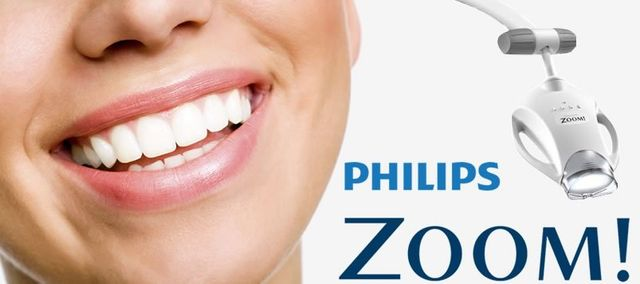 Teeth Whitening Near Canberra | Belconnen Dental Centre