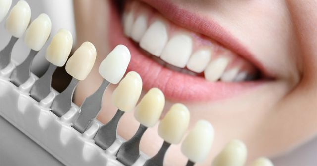 50 Shades Of White How To Choose The Right Shade For Teeth Whitening