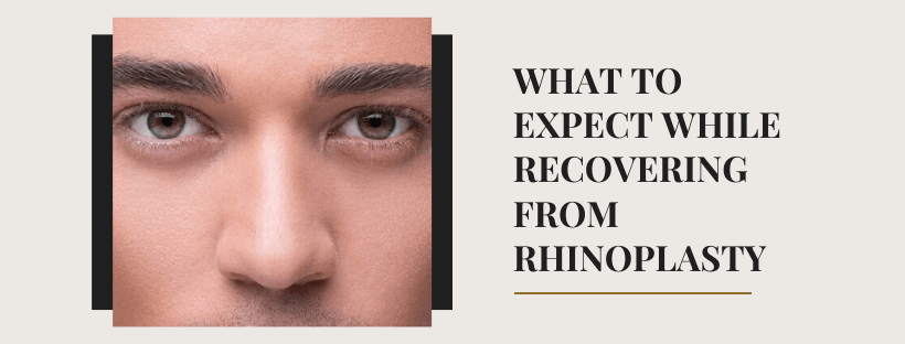 What To Expect While Recovering From Rhinoplasty