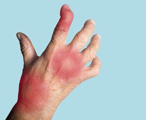 Arthritis Doctors New Jersey Best Arthritis Specialists Nj