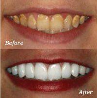 Professional Teeth Whitening Treatment In Burke Virgina