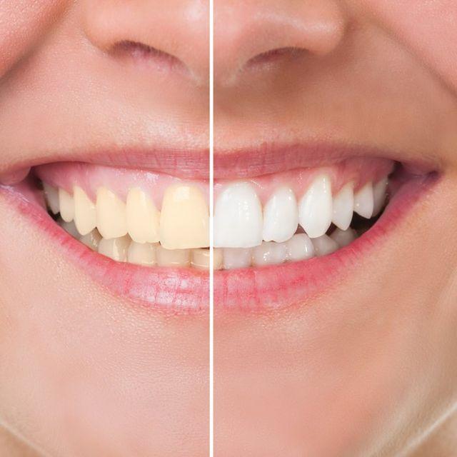 Teeth Whitening Ashland And Ruther Glen Va Ashland Family