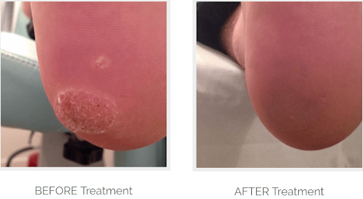Verruca Images Before And After Treatment Demonstrate The Effectiveness Of Our Verruca Removal Treatments
