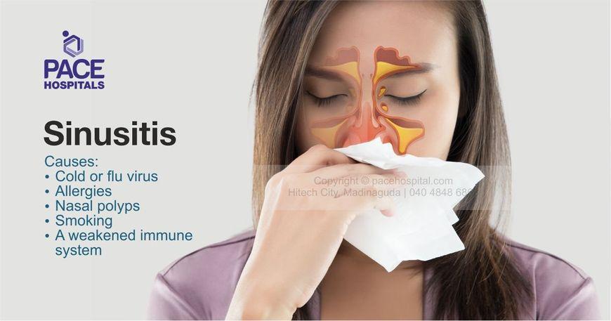 what type of doctor treats sinusitis