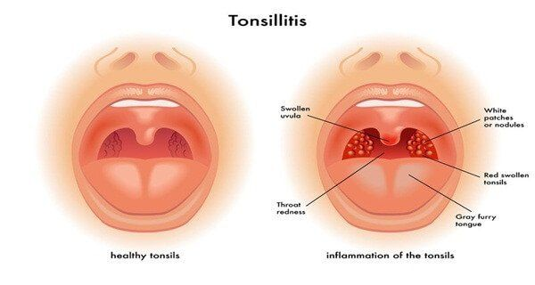 Tonsillitis is an infection of the tonsils