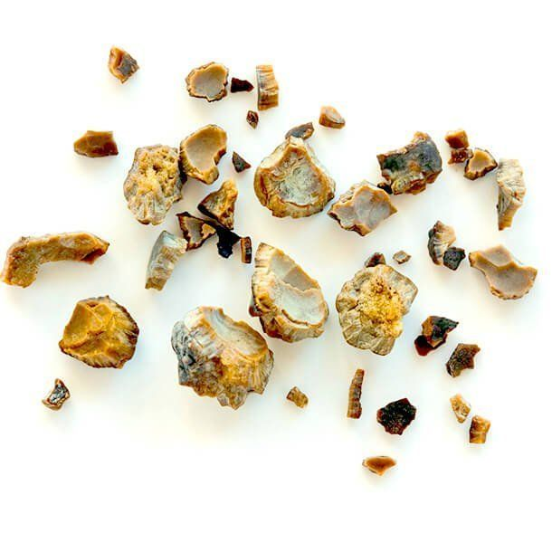 Kidney Stone Cause Symptom Treatment
