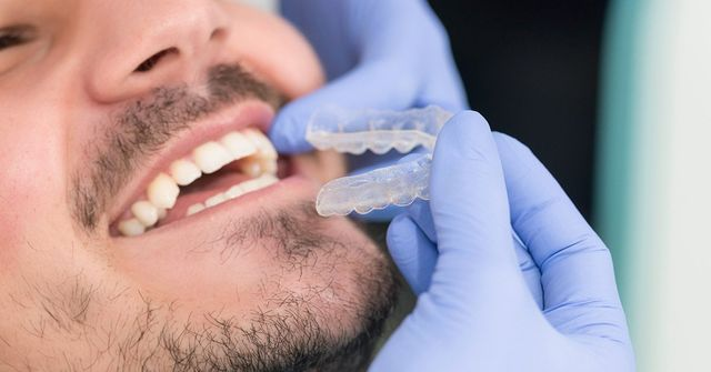 invisalign prices and costs