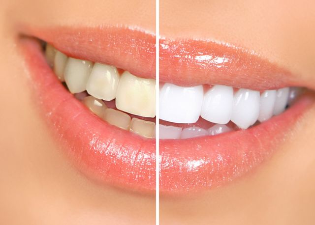 Important Things About Teeth Whitening