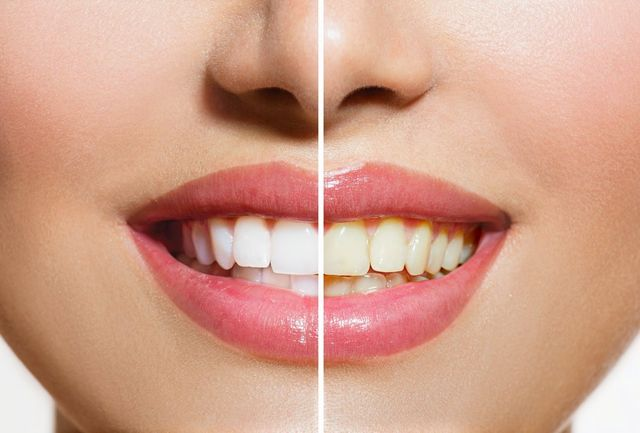 Teeth Whitening Treatments In Bluewater Greenhithe
