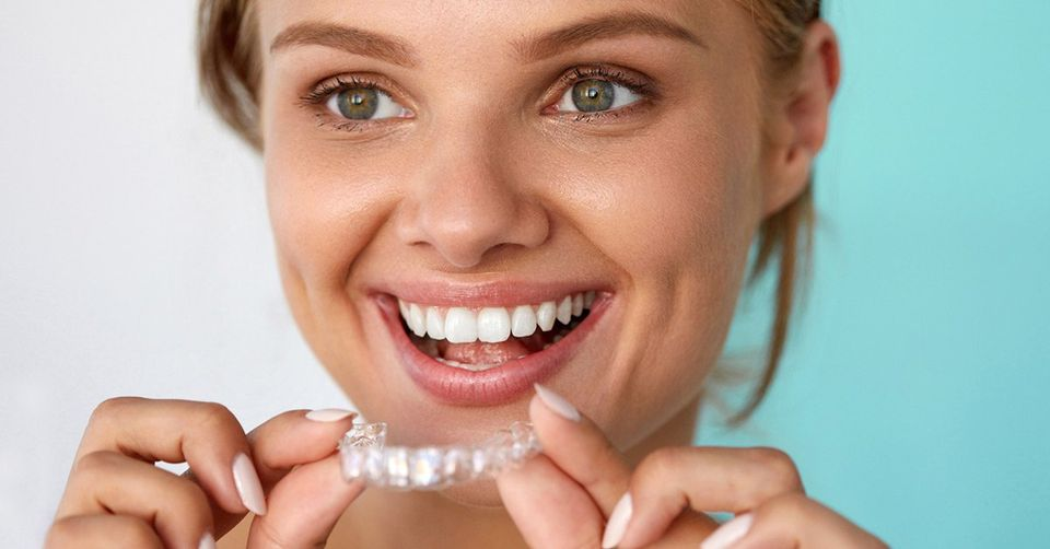 The Invisalign Timeline: How Long Does It Take for ...