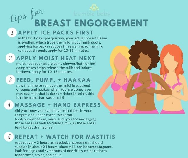 Breastfeeding S Biggest Challenges Blocked Ducts Mastitis