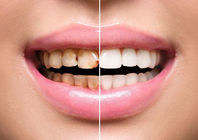 Full mouth reconstruction costs | Best Dental in Houston, TX