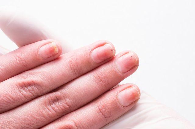 rimozione di smalto per unghie sintomi di parassiti intestinali
