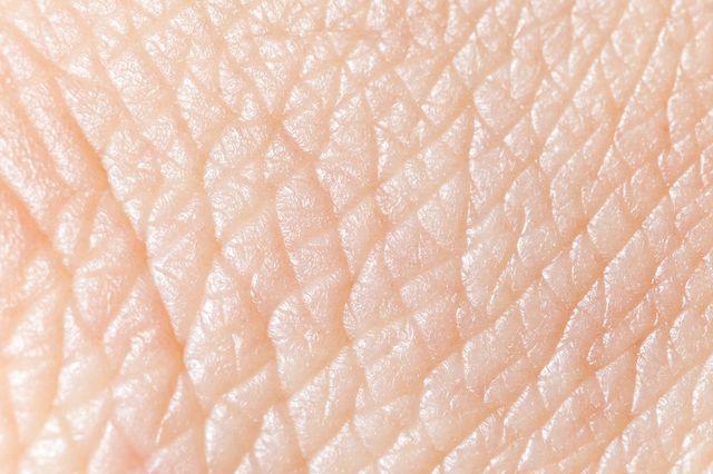 bagno di candeggina per infezione batterica della pelle