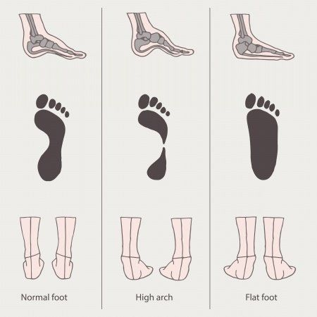 Over-Pronation (Flat Feet