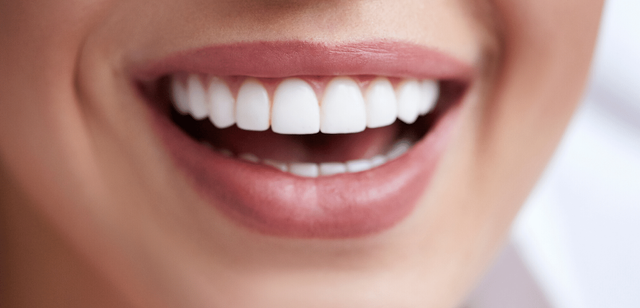 How Veneers Can Improve Your Confidence