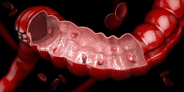 Symptoms Causes And Treatments For Colon Polyps