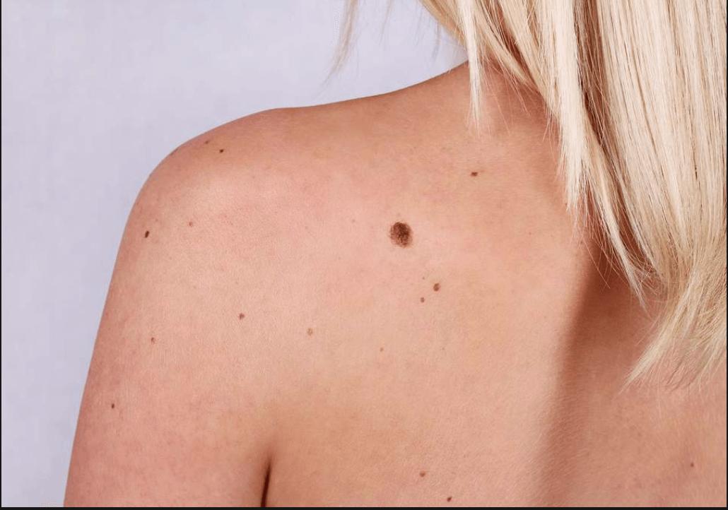 Skin Tag Removal At Revekka Treatments