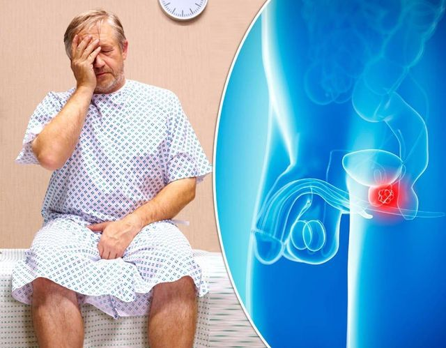 quais são os principais sintomas do câncer de próstata