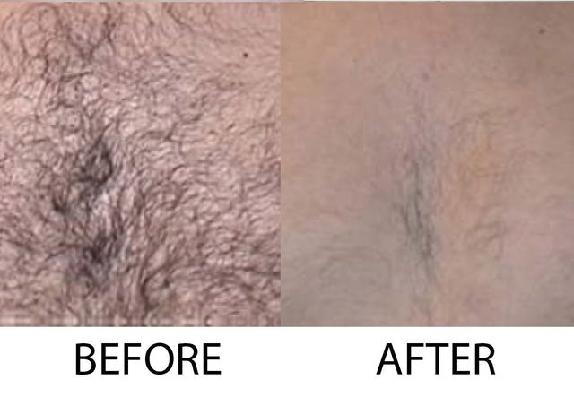 Hair Removal San Diego Laser Hair Reduction Ca