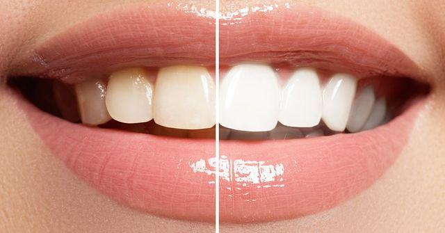 The 101 On Zoom Teeth Whitening