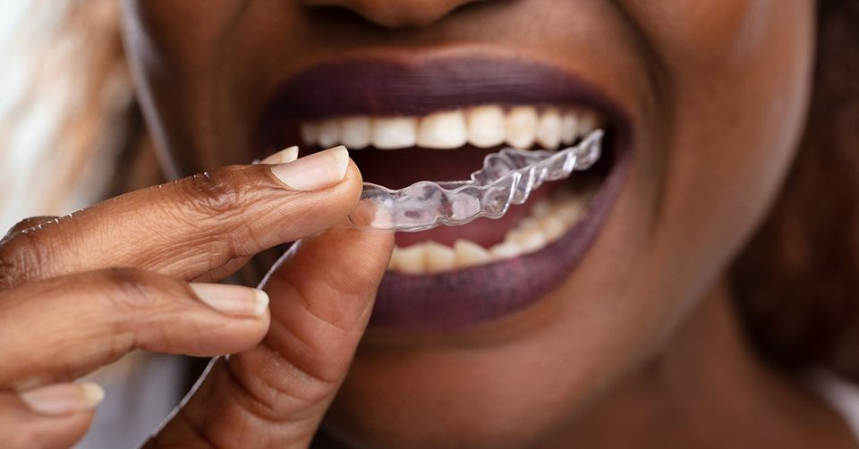 Understanding What's Involved in the Invisalign Process
