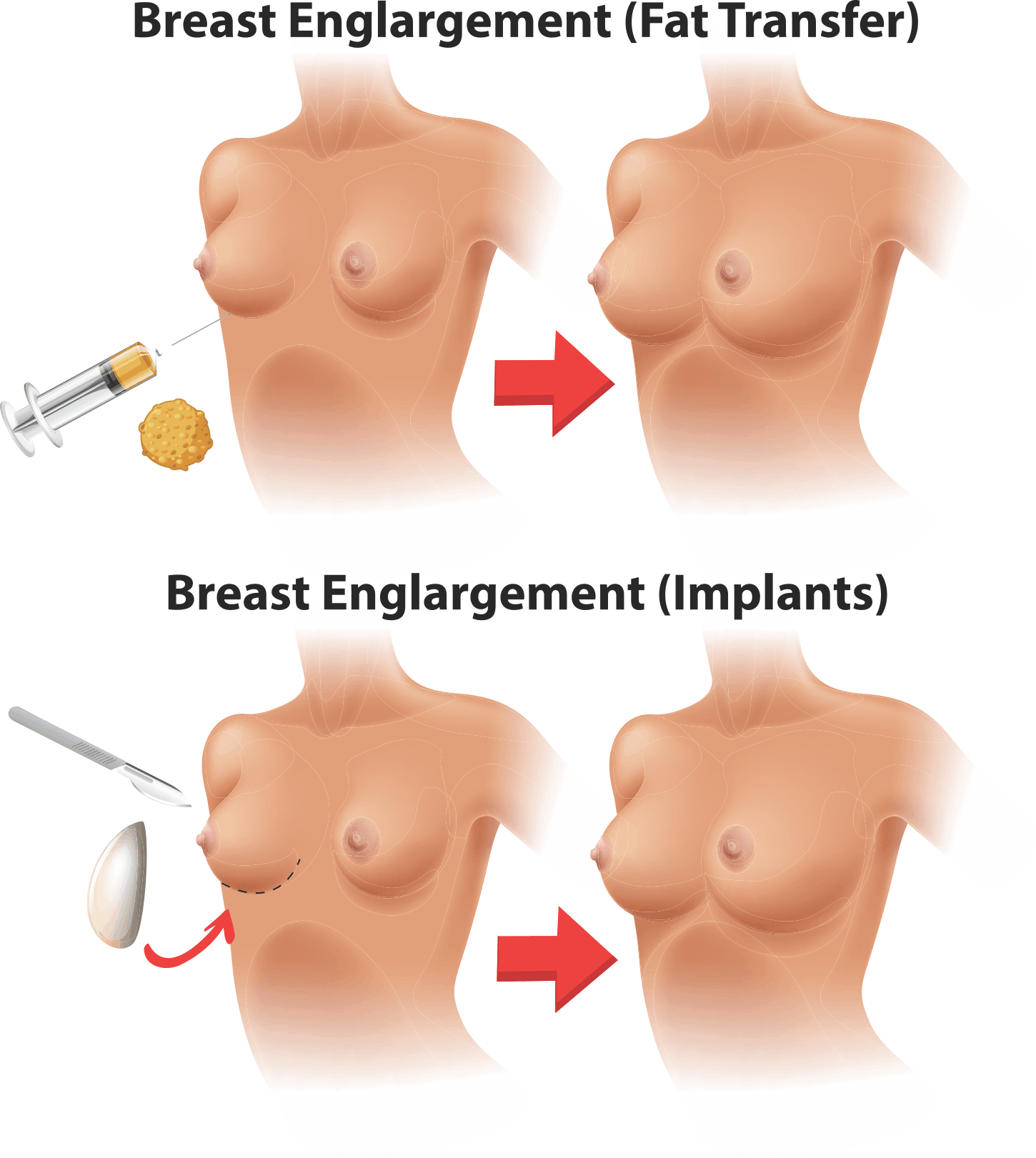 Fat Transfer To Breasts Be Cosmetic