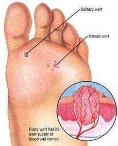 Wart on foot root Foot wart root