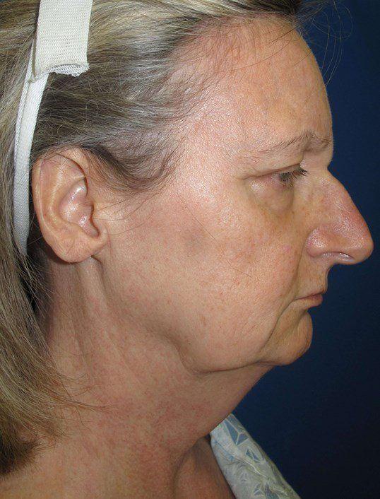 Facial plastic surgeon in gainesville ga